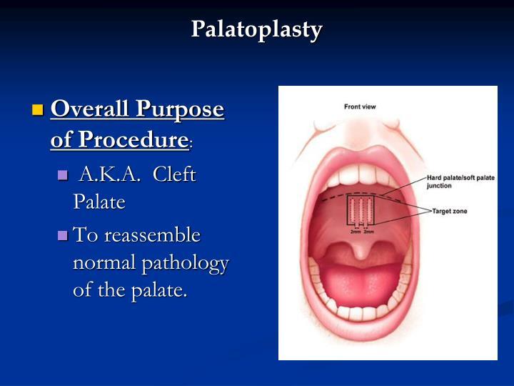 Palatoplasty