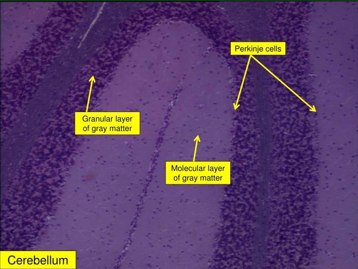 Perkinje cells