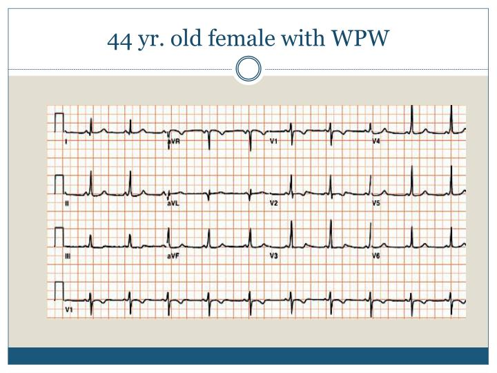 44 yr. old female with WPW