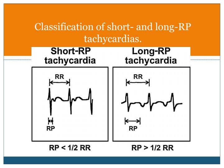 Classification of short- and long-RP