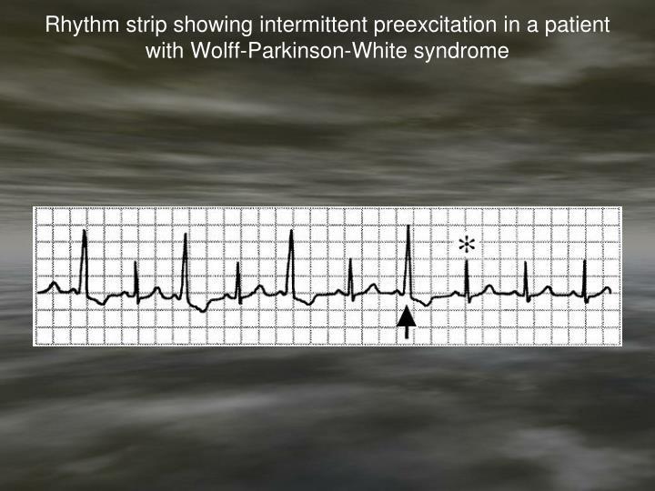 Rhythm strip showing intermittent