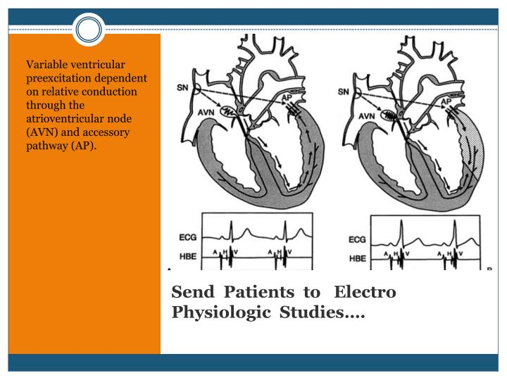 Variable ventricular