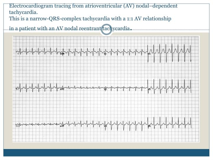 Electrocardiogram tracing from