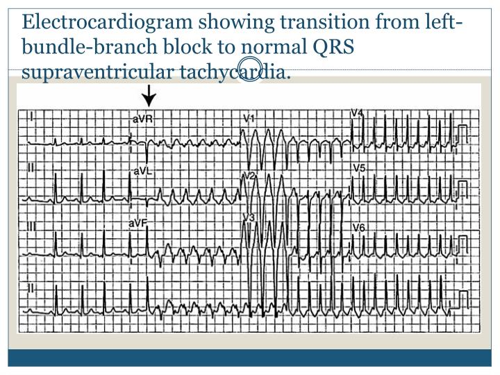 Electrocardiogram showing transition from left-bundle-branch block to normal QRS