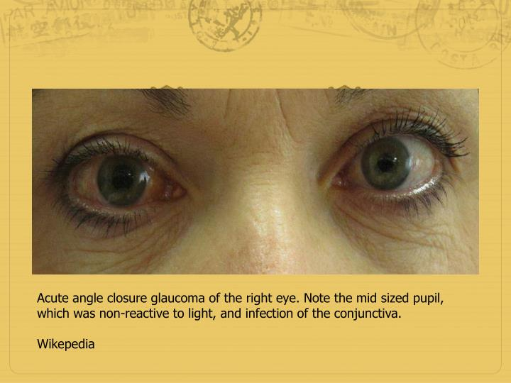 Acute angle closure glaucoma of the right eye. Note the mid sized pupil, which was non-reactive to light, and infection of the conjunctiva.