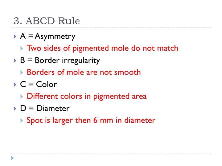 3. ABCD Rule