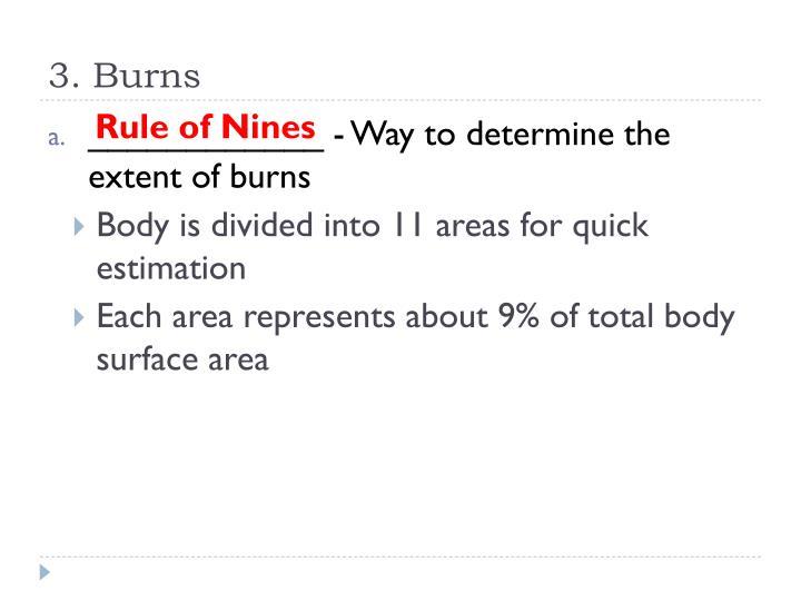 3. Burns