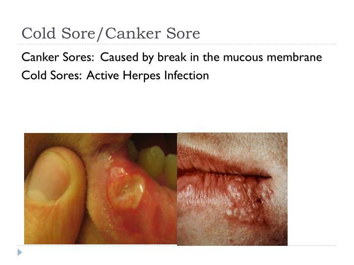 Cold Sore/Canker Sore