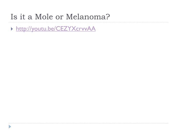 Is it a Mole or Melanoma?
