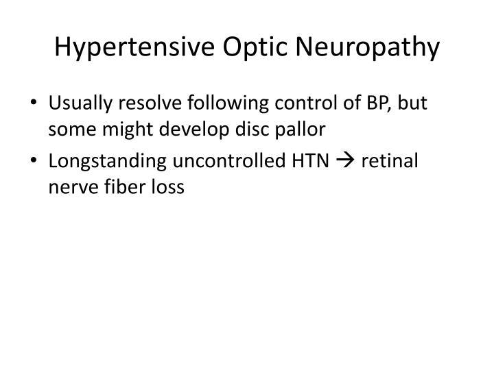 Hypertensive Optic Neuropathy