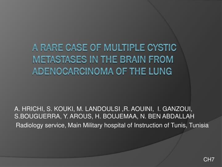 A rare case of multiple cystic metastases in the brain from adenocarcinoma of the lung