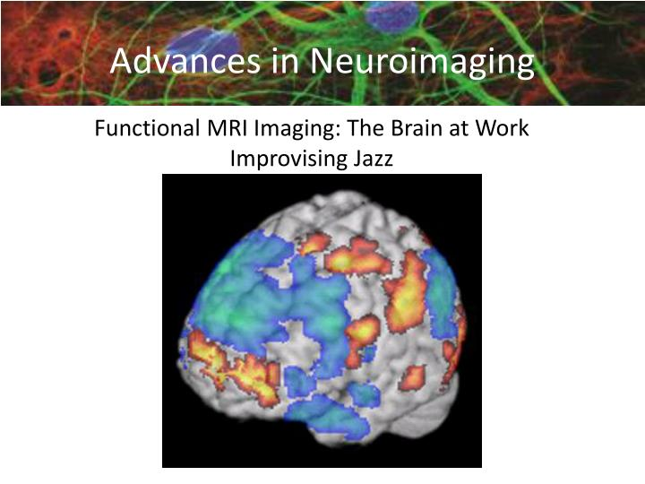 Functional MRI Imaging: The Brain at Work