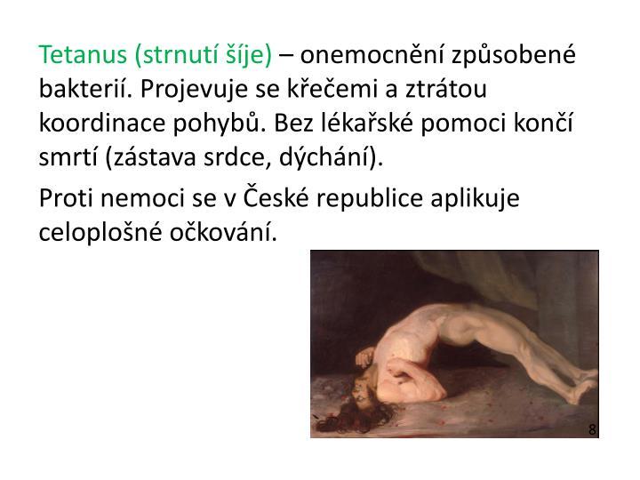 Tetanus (strnutí šíje)