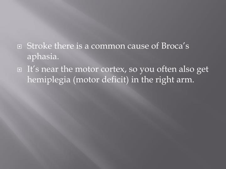Stroke there is a common cause of