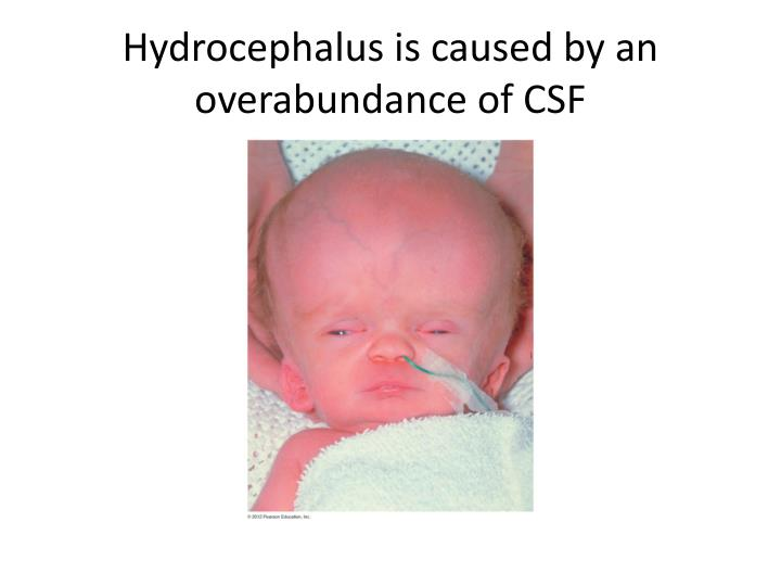 Hydrocephalus is caused by an overabundance of CSF