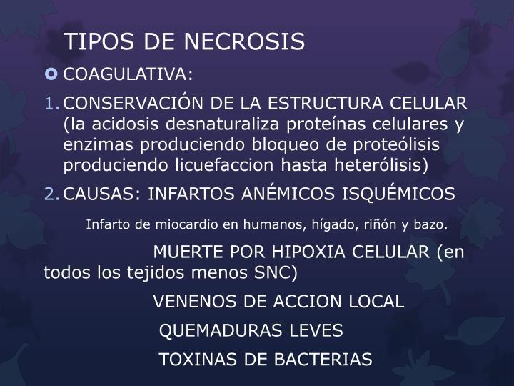 TIPOS DE NECROSIS