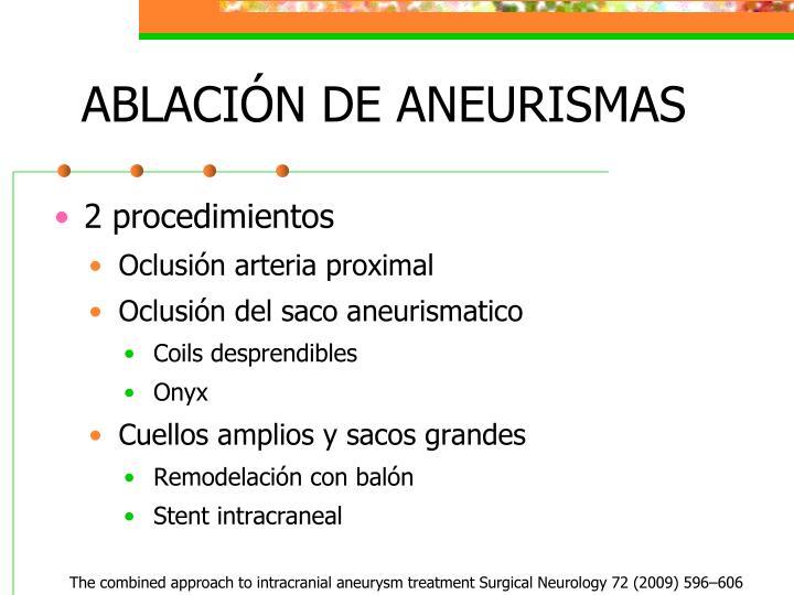 ABLACIÓN DE ANEURISMAS