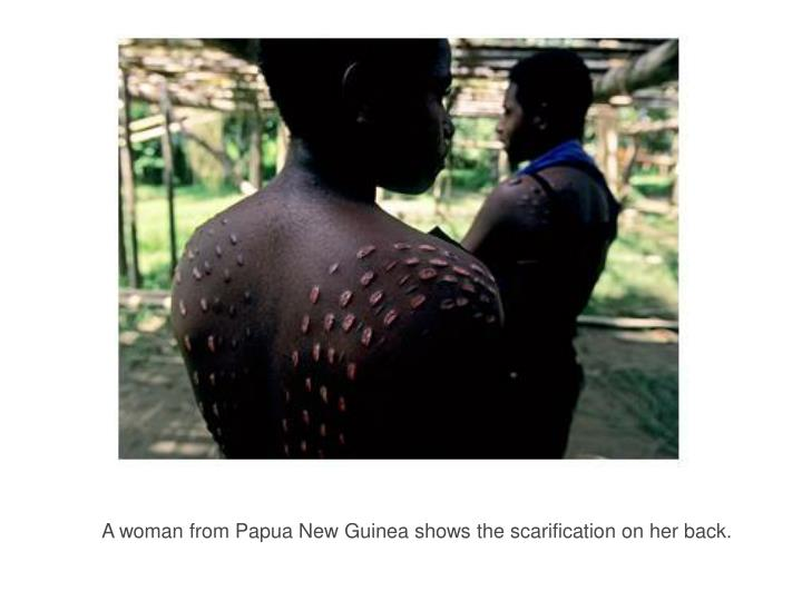 A woman from Papua New Guinea shows the scarification on her back.