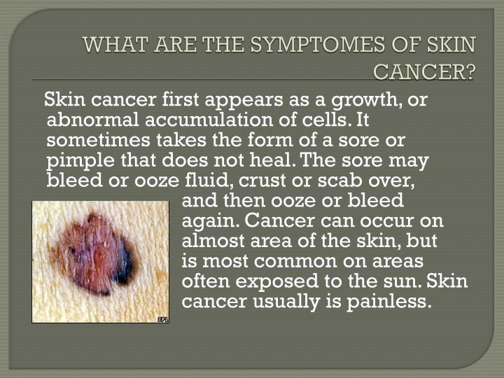 WHAT ARE THE SYMPTOMES OF SKIN CANCER?