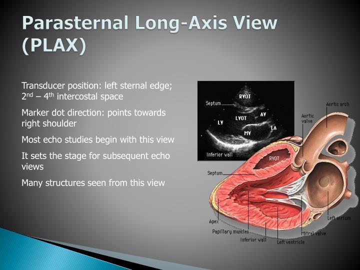 Parasternal Long-Axis View (PLAX)