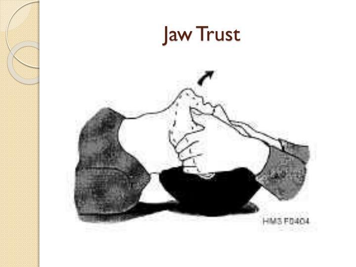 Jaw Trust