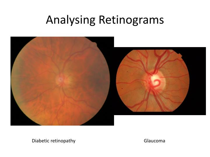 Analysing retinograms