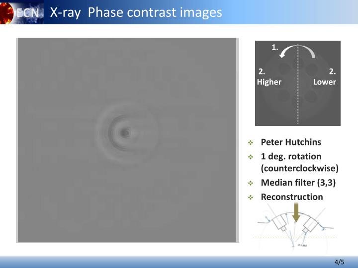 X-ray  Phase contrast images