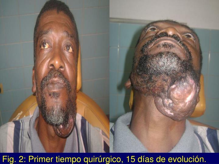 Fig. 2: Primer tiempo quirúrgico, 15 días de evolución.