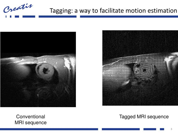 Tagging: a way to facilitate motion estimation