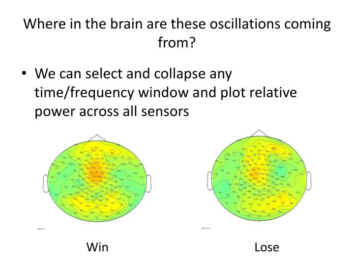 Where in the brain are these oscillations coming from?