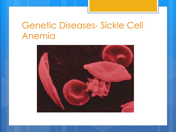 Genetic Diseases- Sickle Cell Anemia