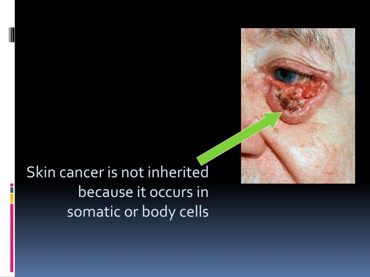 Skin cancer is not inherited because it occurs in
