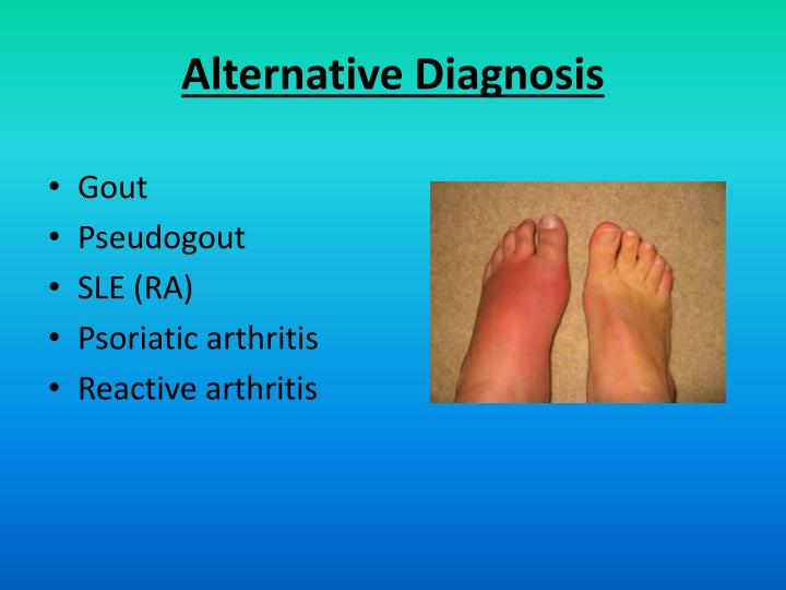 Alternative Diagnosis