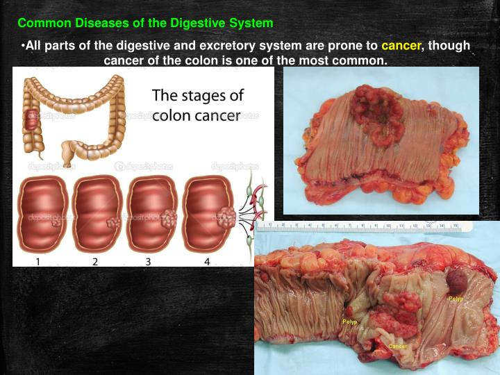 Common Diseases of the Digestive System