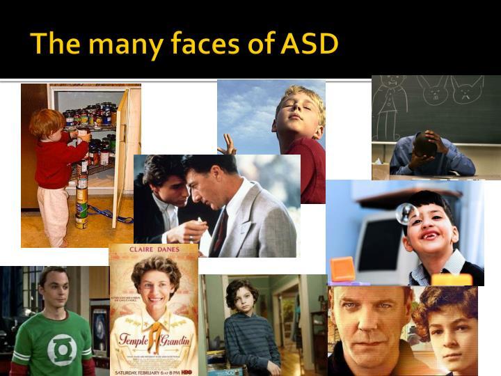 The many faces of ASD