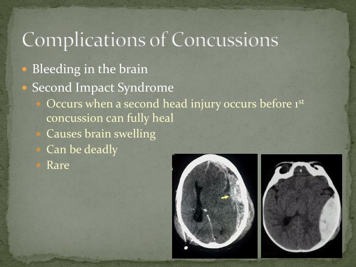 Complications of Concussions