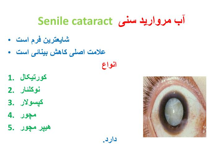Senile cataract