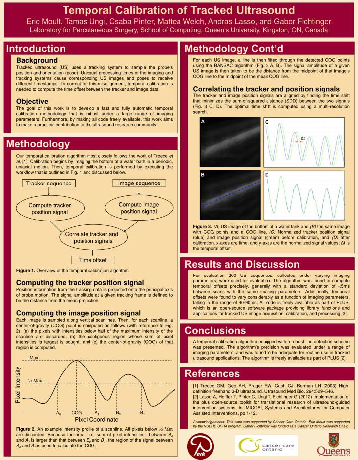 Temporal Calibration of Tracked Ultrasound