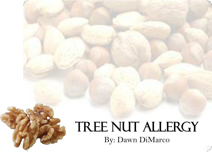 tree nut allergy by dawn dimarco