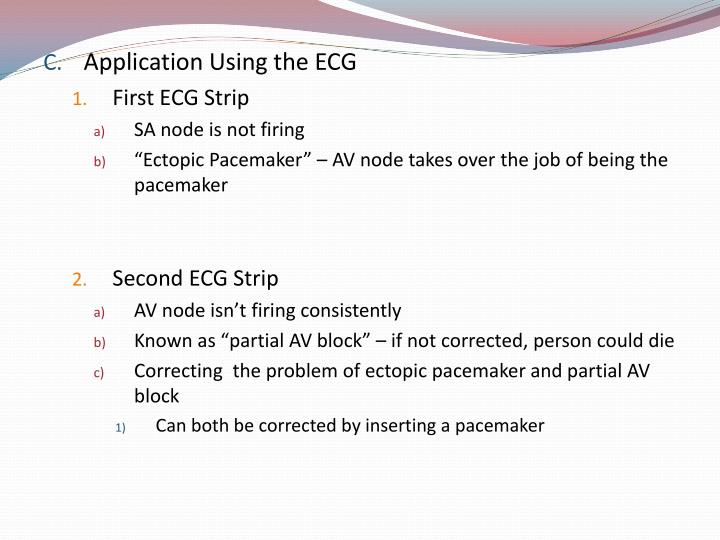 Application Using the ECG