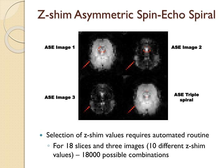 Z-shim Asymmetric Spin-Echo Spiral