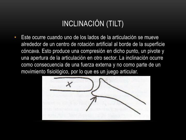 Inclinación (tilt)