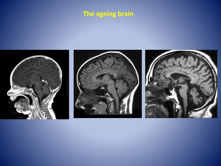 The ageing brain