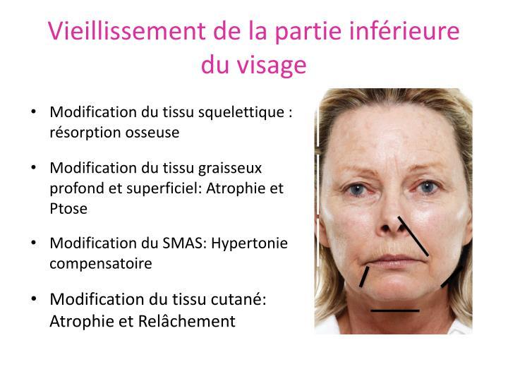Vieillissement de la partie inférieure du visage