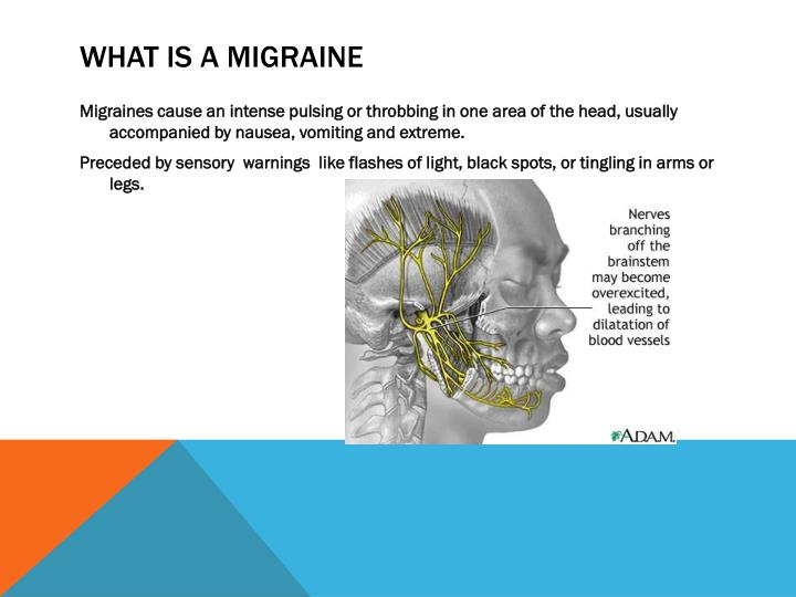What is a migraine