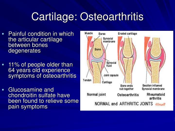 Cartilage: Osteoarthritis