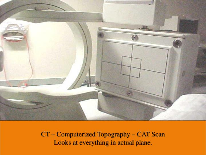 CT – Computerized Topography – CAT Scan