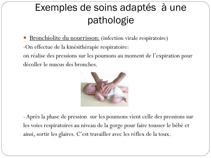 Exemples de soins adaptés  à une pathologie