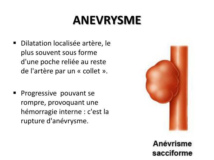 ANEVRYSME