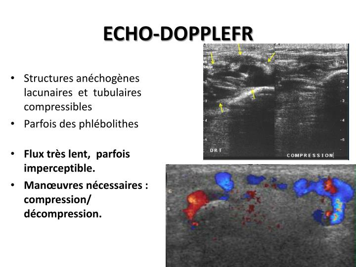 ECHO-DOPPLEFR